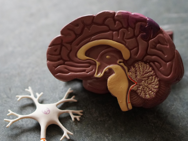 Plastic model of a brain and nerve ending
